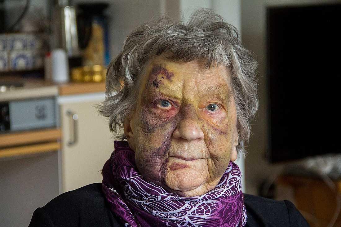 95-åriga Karin Forslund efter att ha fallit när hon försökt ta sig till toaletten på egen hand. Hon ville inte störa den stressade personalen på hennes äldreboendet.