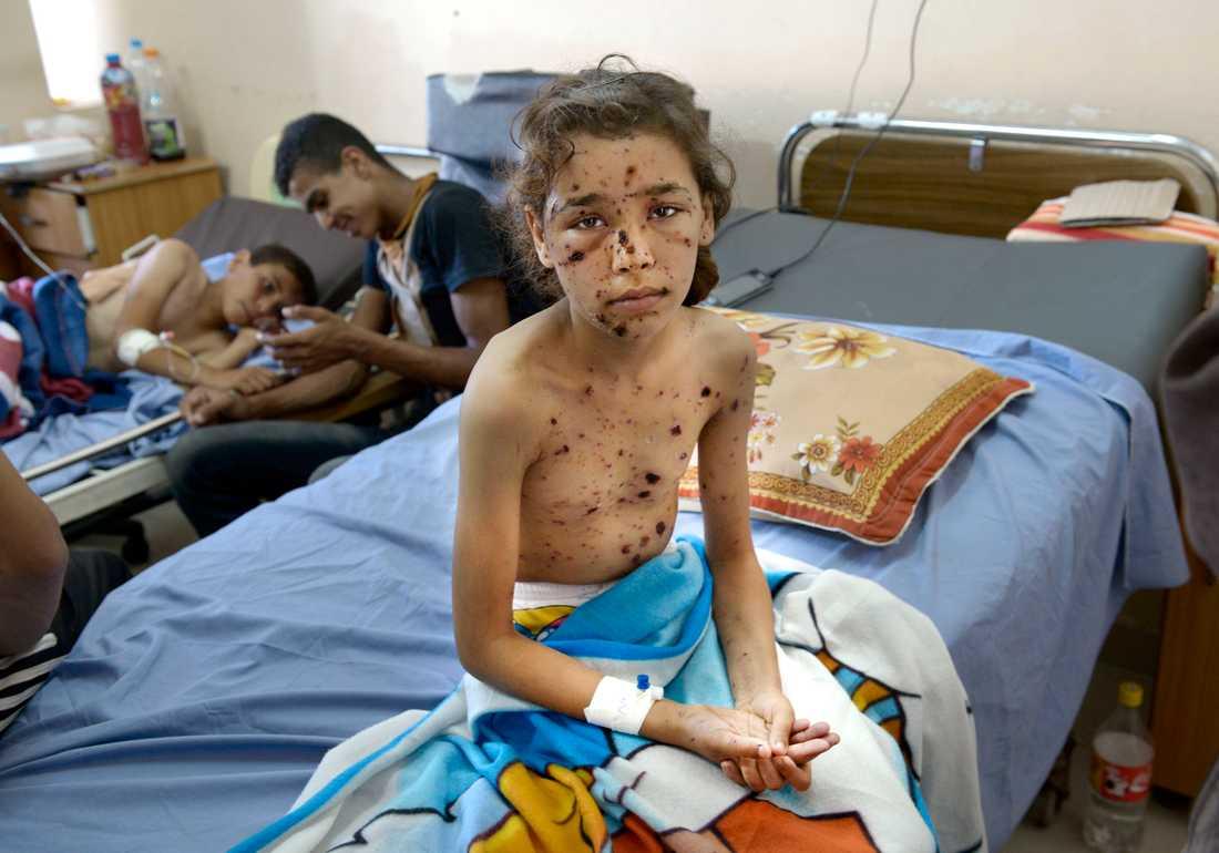 9-åriga Dalias kropp är täckt av splitterskador.