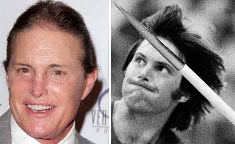"""""""Offer för mediernas hån"""" Bruce Jenner har tidigare erkänt att han gjort vissa ingrepp, då han menade att han gick igenom en svår kris på 80-talet som gjorde att han valde att operera sig. Bruce styvdotter Kim Kardashian har även hon kommenterat Jenners operationer:  """"Bruce fick rådet av en dålig läkare att göra ett ansiktslyft och operera näsan, men resultatet var inte vad Bruce hade hoppats på och han har sedan dess blivit ett offer för mediernas hån"""", skrev Kim på sin blogg."""