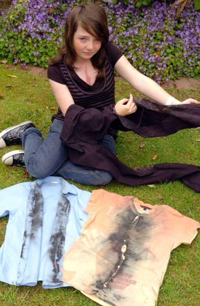 De sönderbrända kläderna.