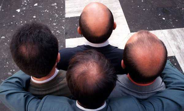 Kalt Det finns flera typer av håravfall. Att få rätt diagnos är viktigt för att behandlingen ska fungera.