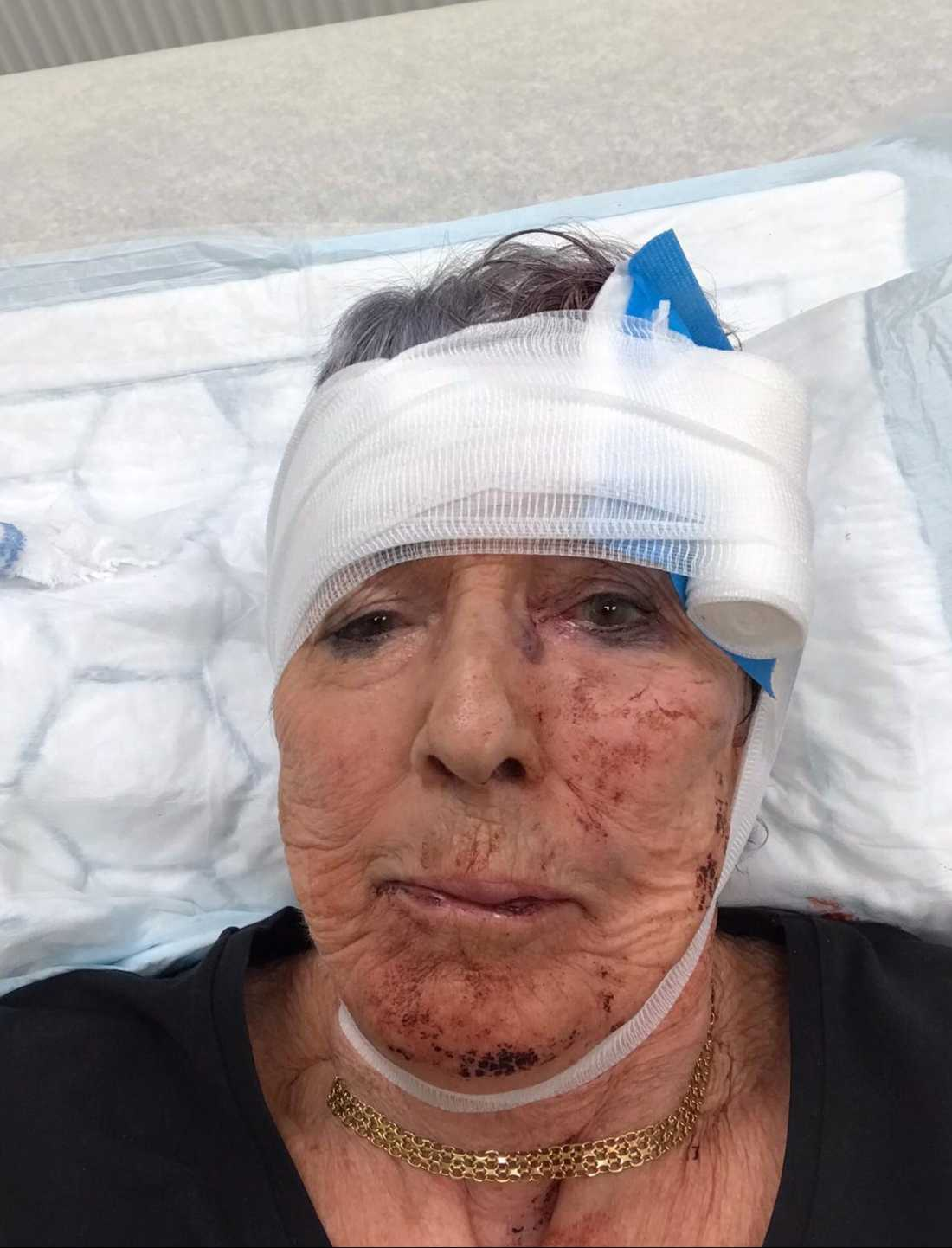 Laila, 81, föll handlöst och slogs blodig mot marken.