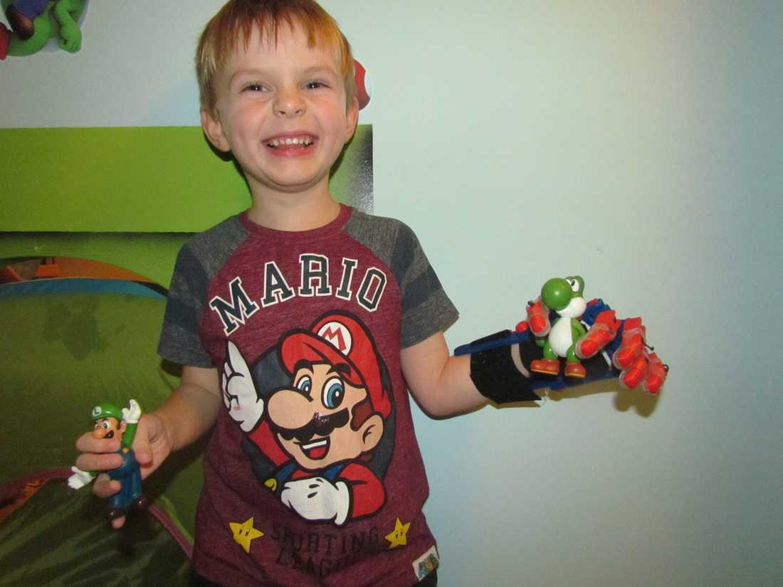 Antoni med sin Super Mario-gubbe Äntligen! Så här glad blir man när man är 6 år, saknar en hand, men precis fått en 3D-protes och för första gången kan greppa en leksak i varje hand. Antoni Rudd i Polen.