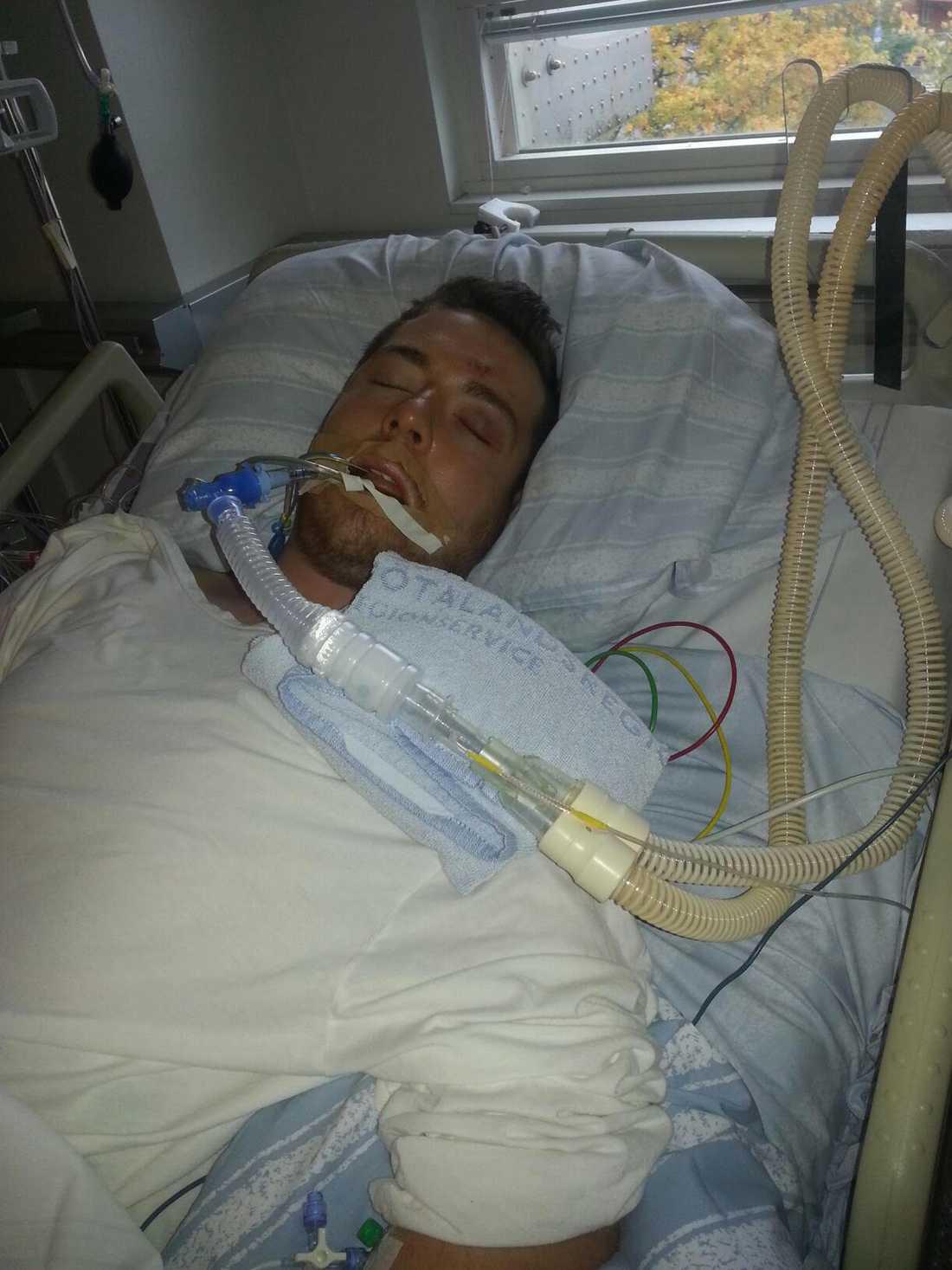 Kevin låg nedsövd i respirator i fyra dygn.