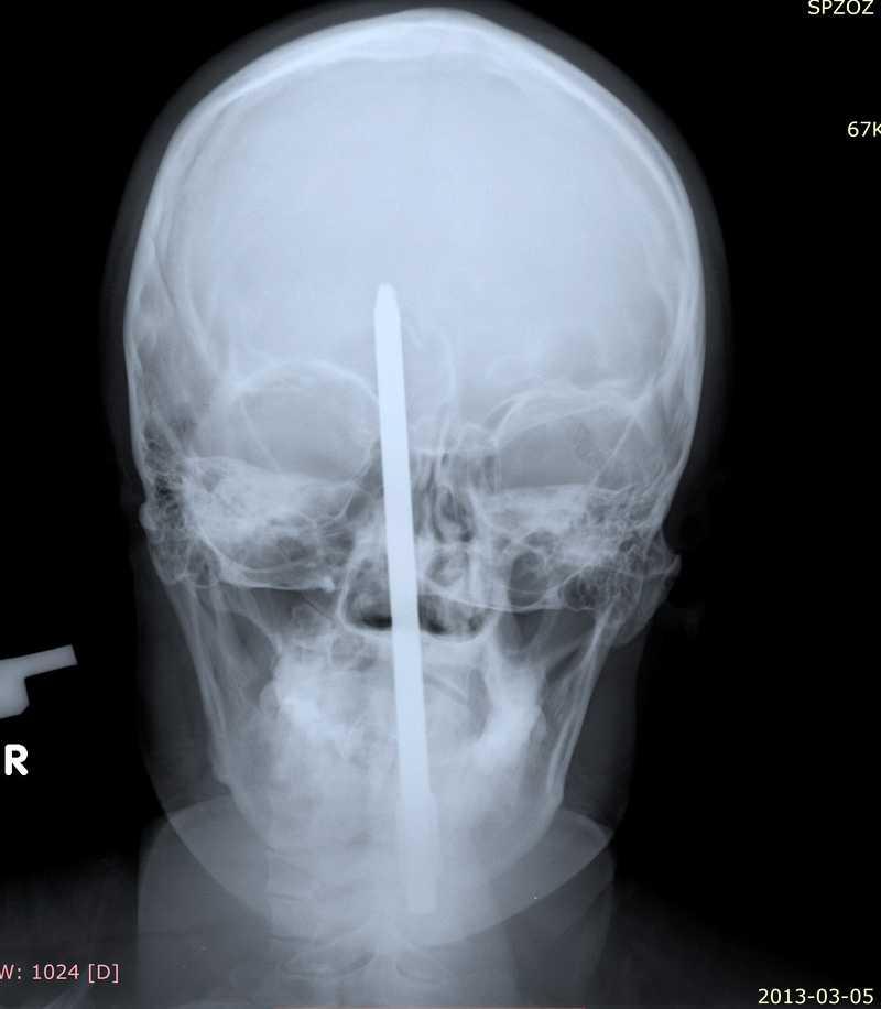 Skruvmejseln trängde fem centimeter in i huvudet.