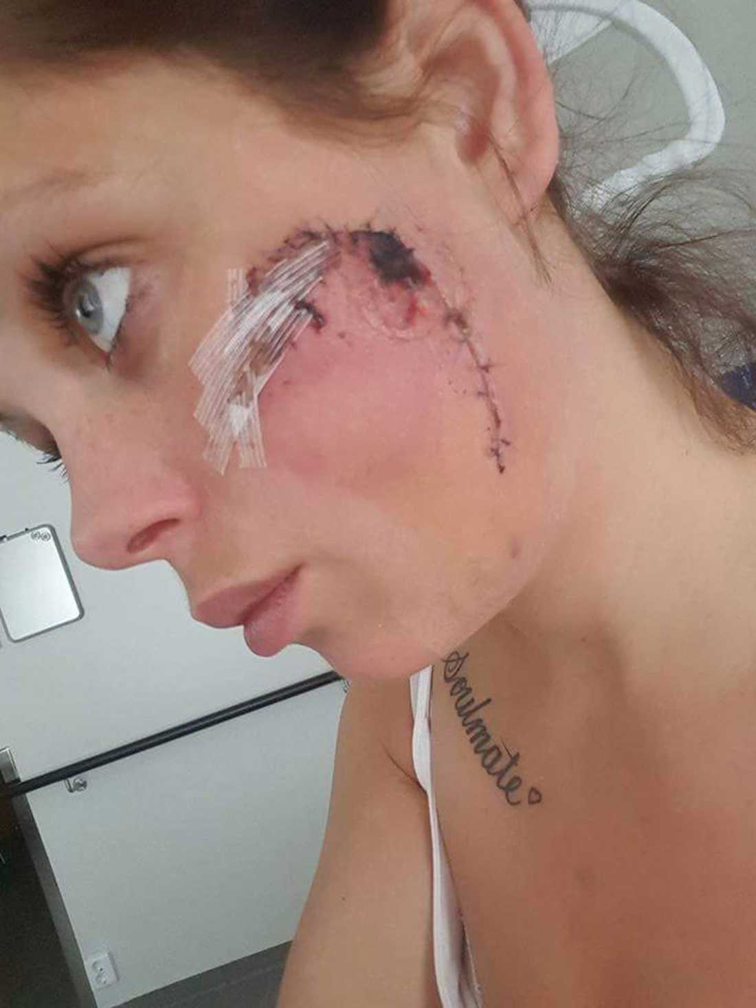 Danielle Siljebäck fick sy över 30 stygn på bettet i sin kind.