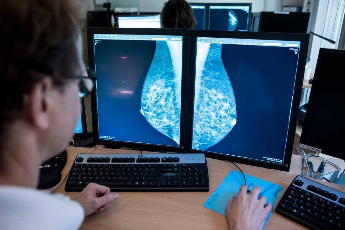 I stället för att låta en läkare titta på röntgenbilder av bröst, kan konstgjord intelligens göra samma sak fast både snabbare och bättre.