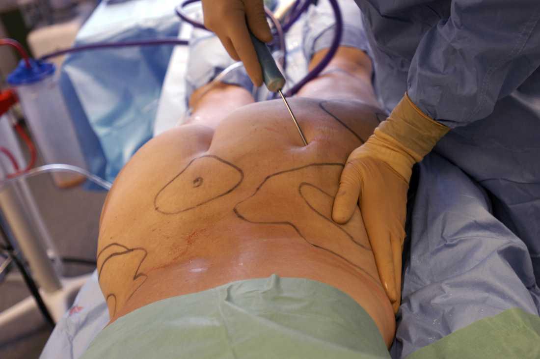 Plastikkirurgen Ulf Samuelson möter regelbundet patienter som har problem efter både estetiska injektioner och plastikkirurgi. På bilden en fettsugning av mage och lår på Akademikliniken på Östermalm.