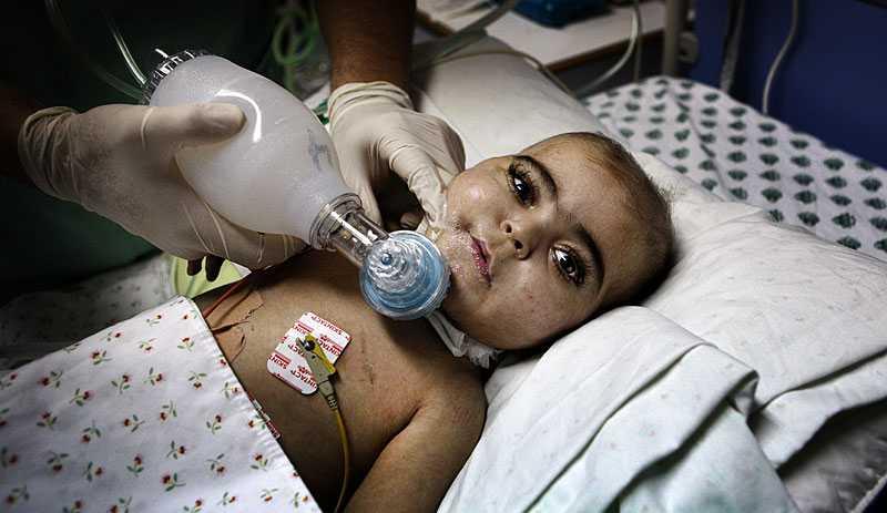 Hamad, 18 månader, är döende i en lungsjukdom. När respiratorn krånglar får personalen använda handblåsan för att han ska kunna få luft.