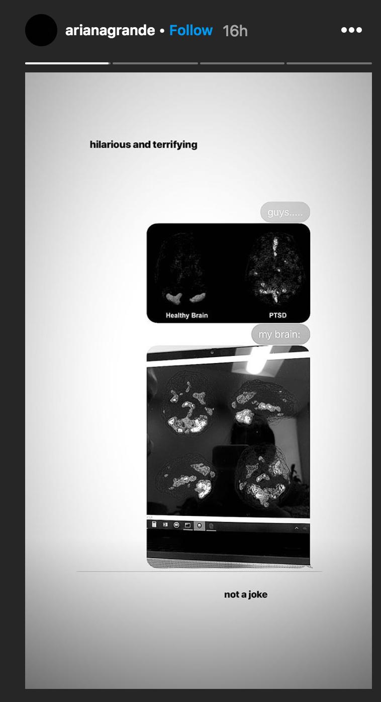 De översta bilderna visar en frisk hjärna och sjuk hjärna. Den undre bilden visar Ariana Grandes hjärna.