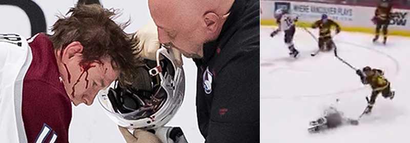 Petterssons skott träffade Matt Calvert i ansiktet.