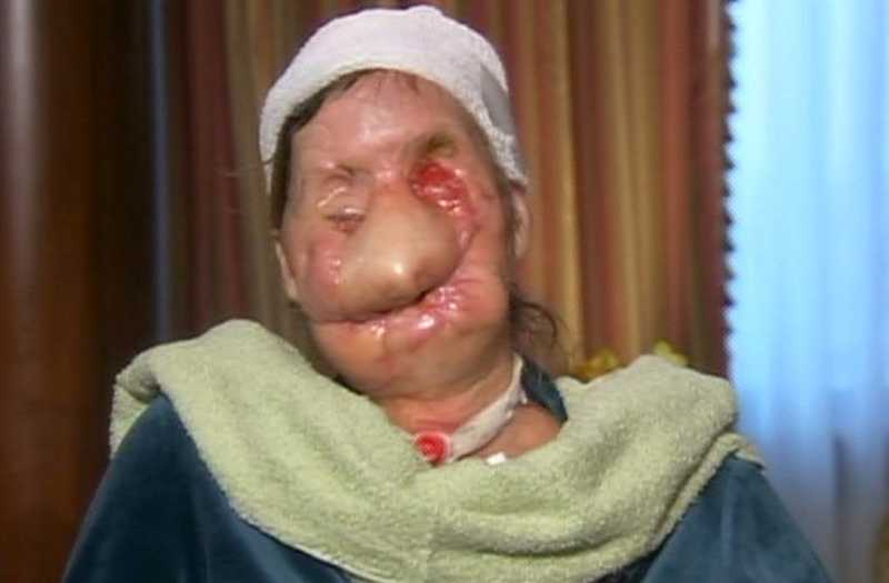 Charla Nash visade sitt vanställda ansikte i Oprah Winfrey show.