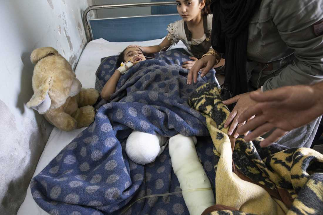 Sara, 8, har benen i bandage. Nedre delen av det högra är borta.
