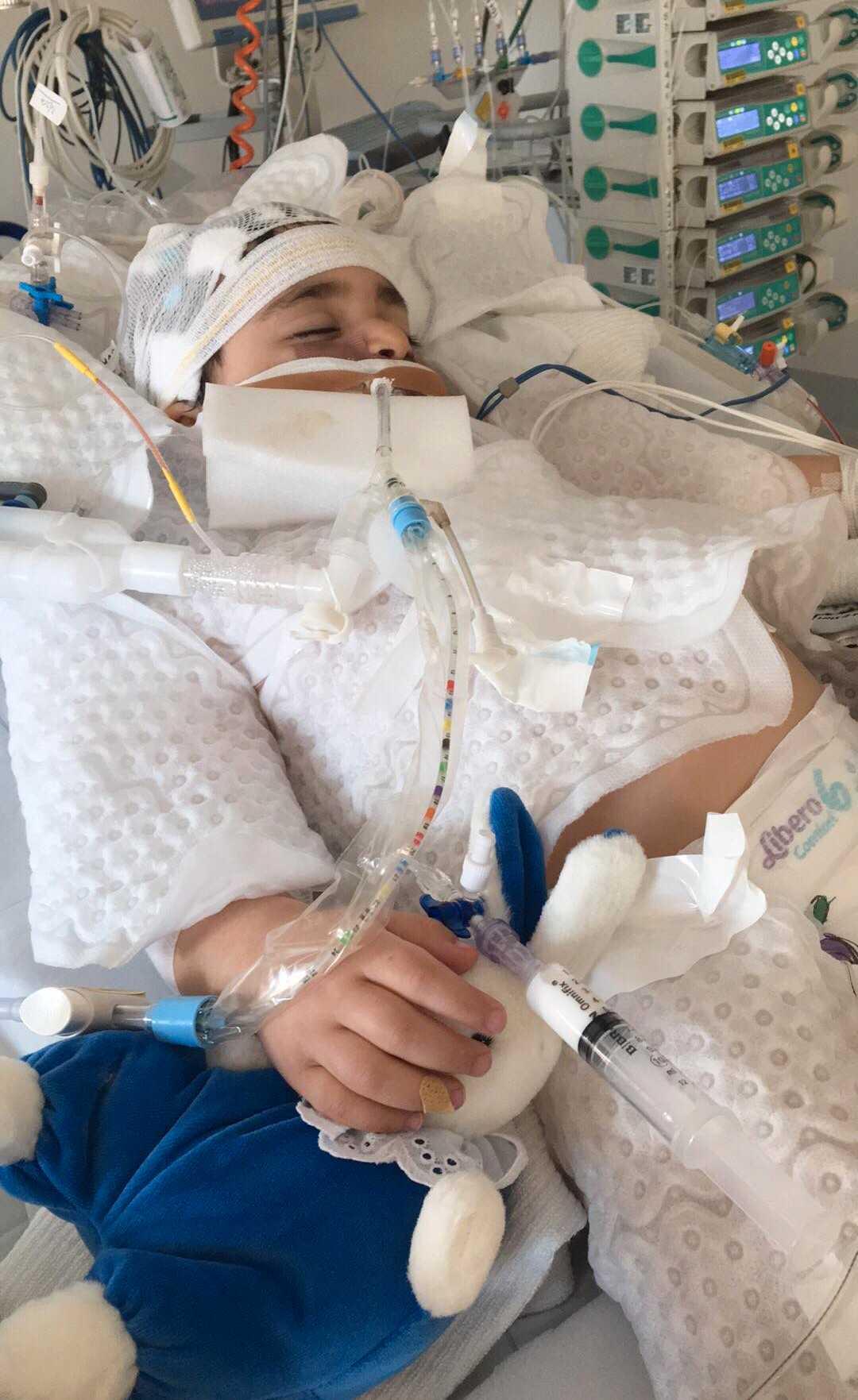 Johannes, 1, hamnade i respirator efter att vindruvan fastnade i luftstrupen.
