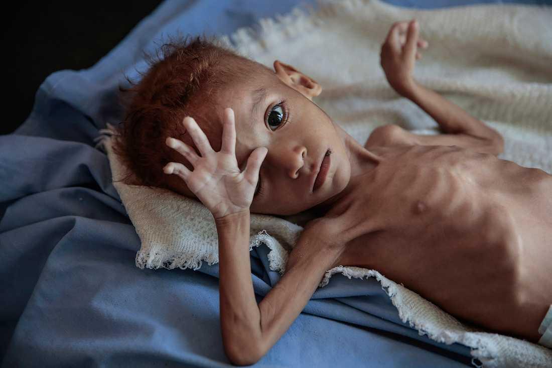 Konflikten i Jemen har lett till den värsta katastrofen i världen just nu, enligt FN.