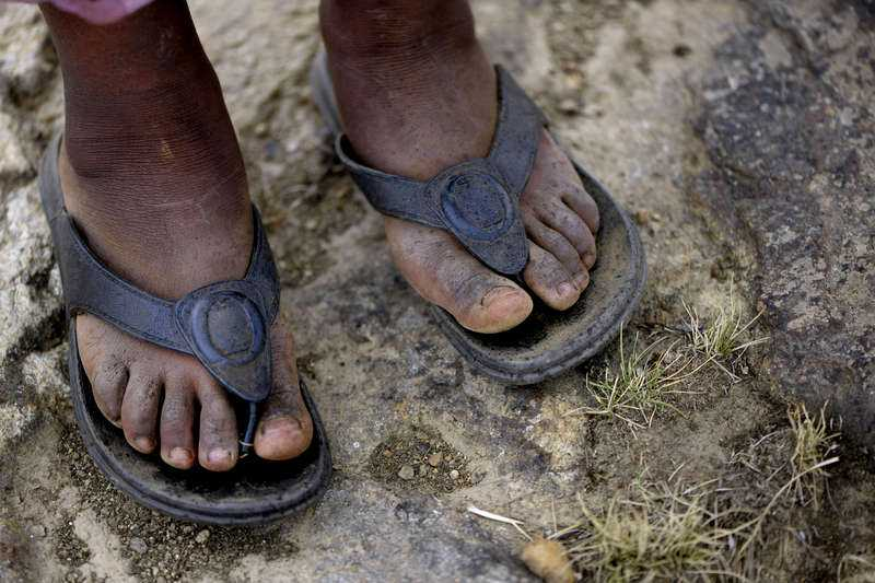 Serawits sandaler är två nummer för stora och glappar när hon går.