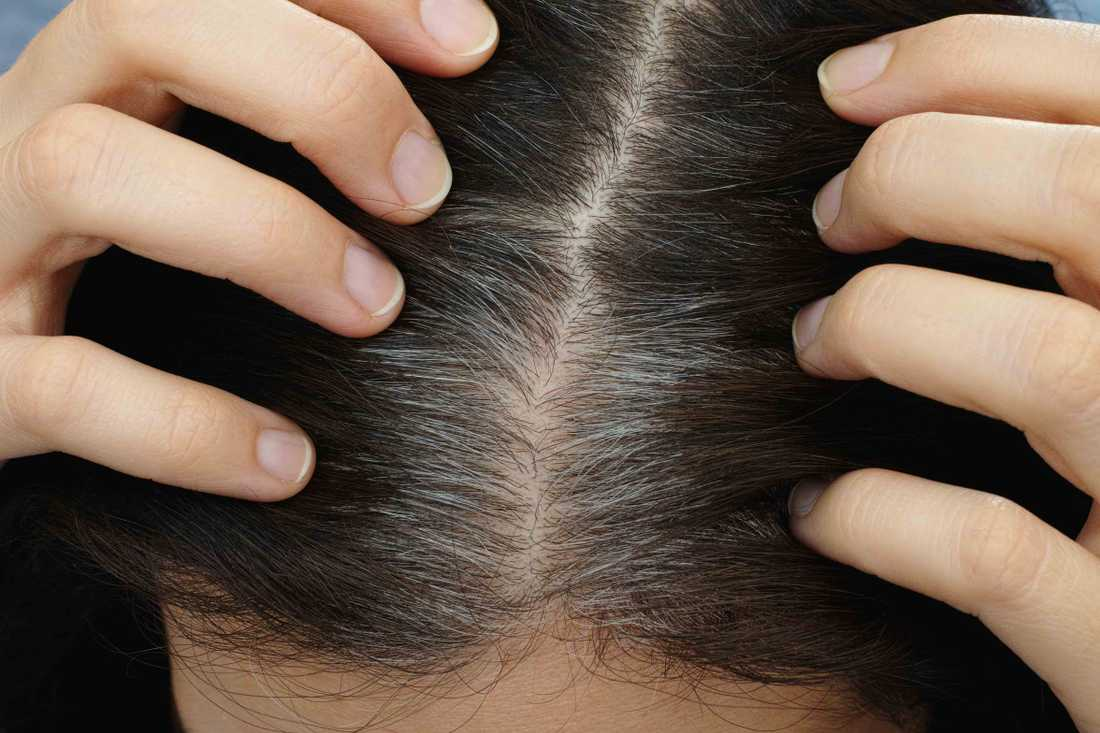hjälp håret att växa