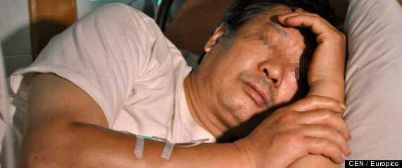 Fei Lin på sjukhuset efter brottet.