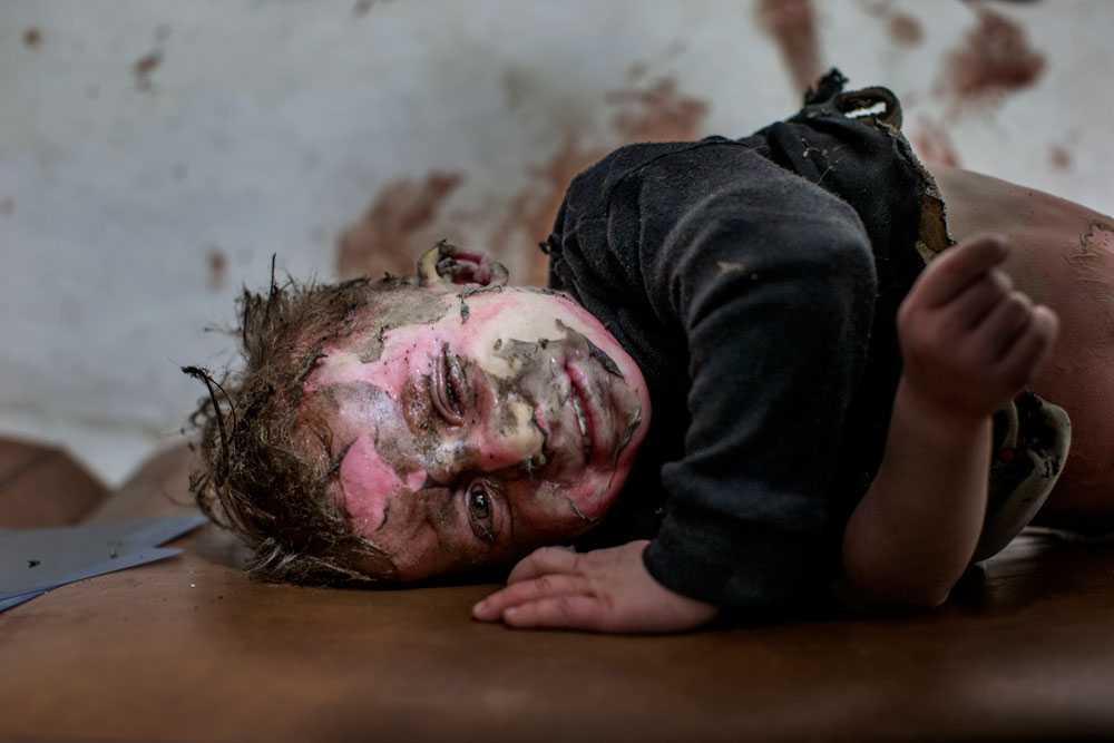 NICLAS HAMMARSTRÖM På ett fältsjukhus ligger en liten pojke med svåra brännskador och väntar på hjälp.