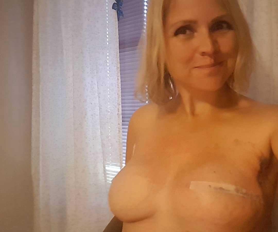 Idag har hon rekonstruerat båda sina bröst.