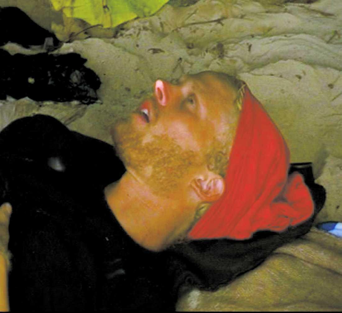 """Efter lite över en månad på """"Robinson""""-ön sa Erik Blomqvists kropp stopp. Han hade gått ner 14 kilo, han blev apatisk och benen domnade bort. På natten fick han panik och en doktor fick komma och undersöka honom."""