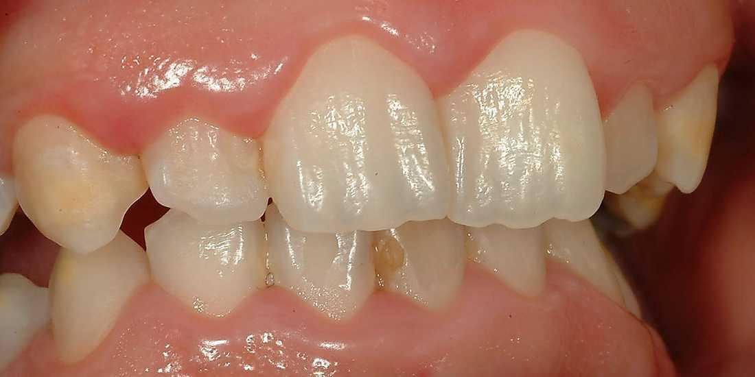 Friska tänder En 20-åring med oskadad emalj. Det som är gult är tandlagningar.