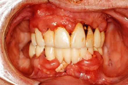 Patient med långt framskriden tandlossning.