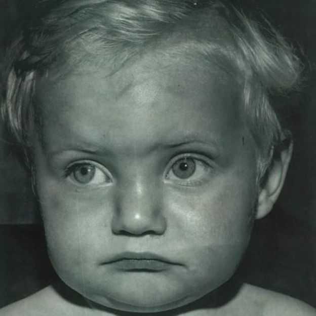 Paul Booth, som var 18 månader gammal när det fotot togs.
