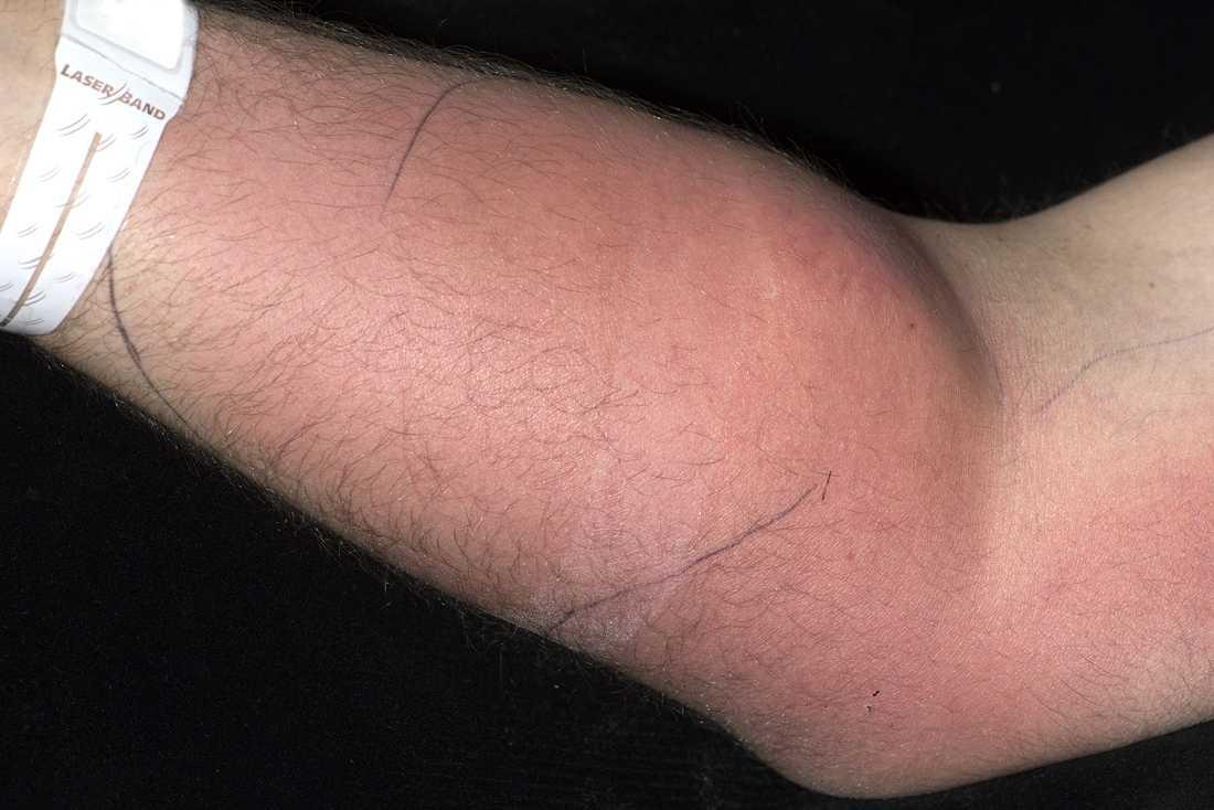 Underarmen var både röd, svullen och infekterad.