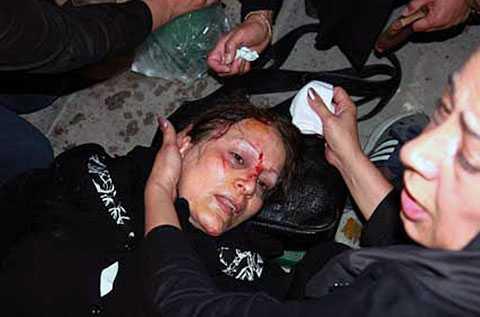 Bilden sägs visa en kvinna som skadats i samband med protesterna mot valresultatet i Iran, där den sittande regimen vann en jordskredsseger.