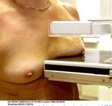 Mammografi är ett sätt att upptäcka bröstcancer.