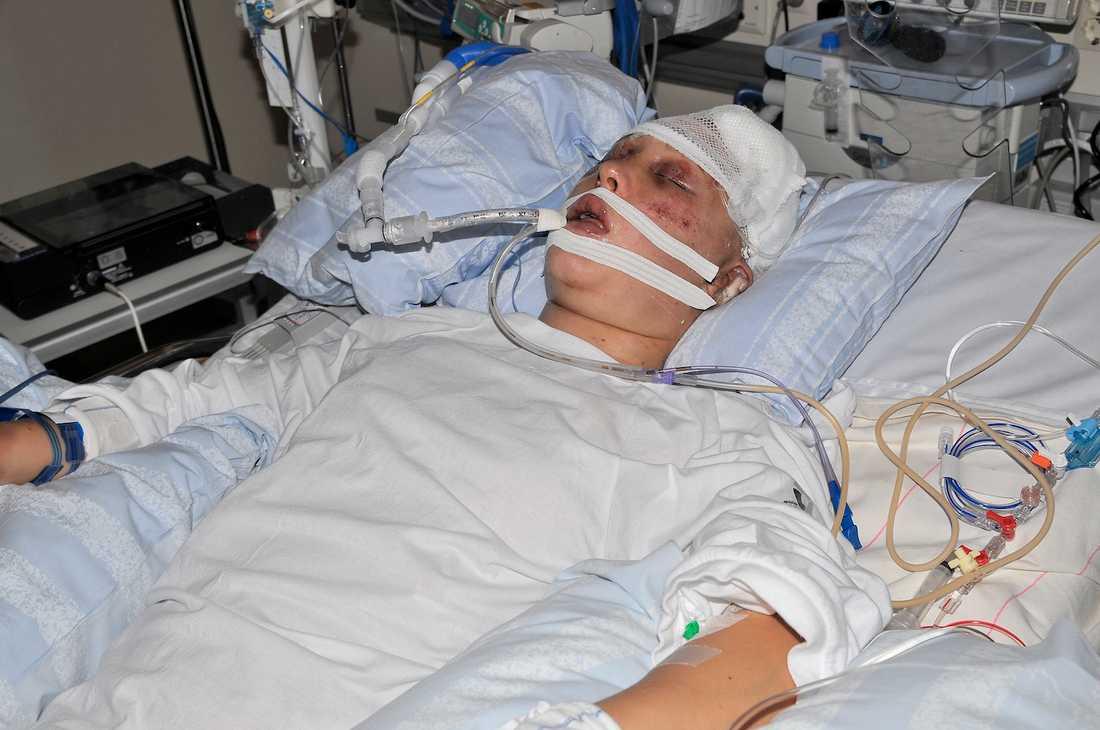 I början visste ingen om Emma skulle överleva, eller vilka skador hon i så fall skulle få.