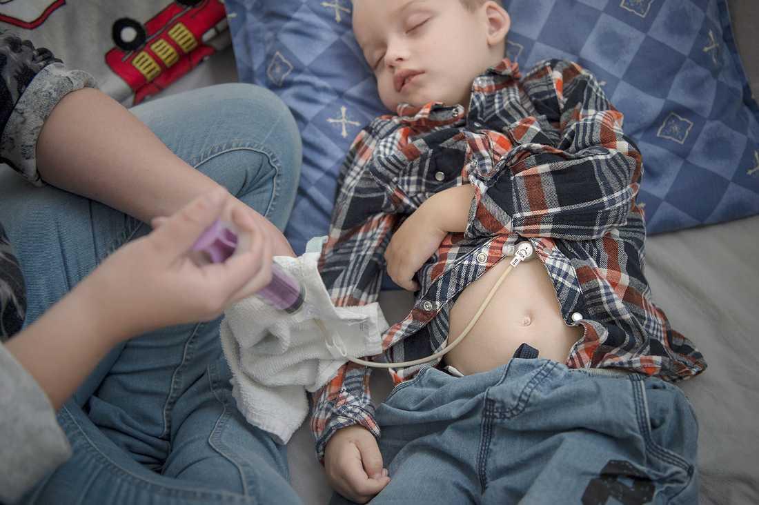 Cimon kan inte äta eller svälja utan får all näring genom en sond via en knapp i magen. Det kan ta upp till en timma att sondmata honom eftersom han annars lätt kräks upp maten eller blir spastisk.