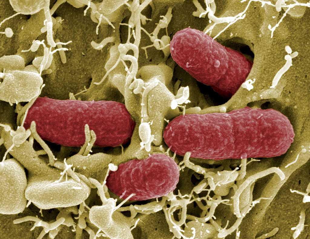 EHEC-bakterier.