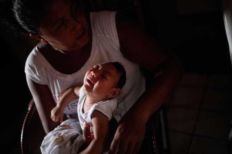 Brasilianska Alice, tre månader, föddes med en microcefali.