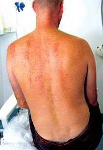 permanent hårborttagning rygg