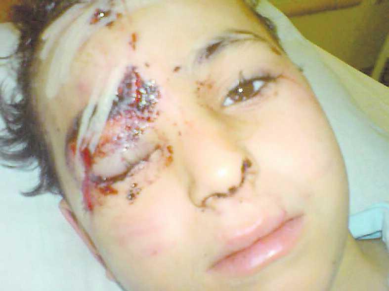 Hunden tog ett rejält grepp om Ibrahims huvud.