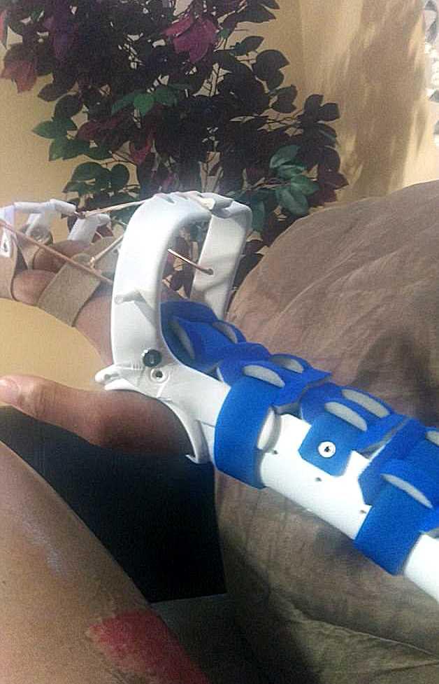 Antoine Boylston fick opereras flera gånger efter att ha drabbats av en dödlig infektion.