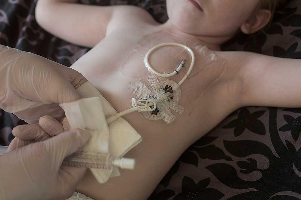 Julia kan inte inta föda på vanligt sätt, utan får all näring intravenöst rakt in i blodomloppet via en central venkateter i bröstet, nära hjärtat. CVK:n måste hela tiden kontrolleras så den ligger rätt och inte har åkt ut.