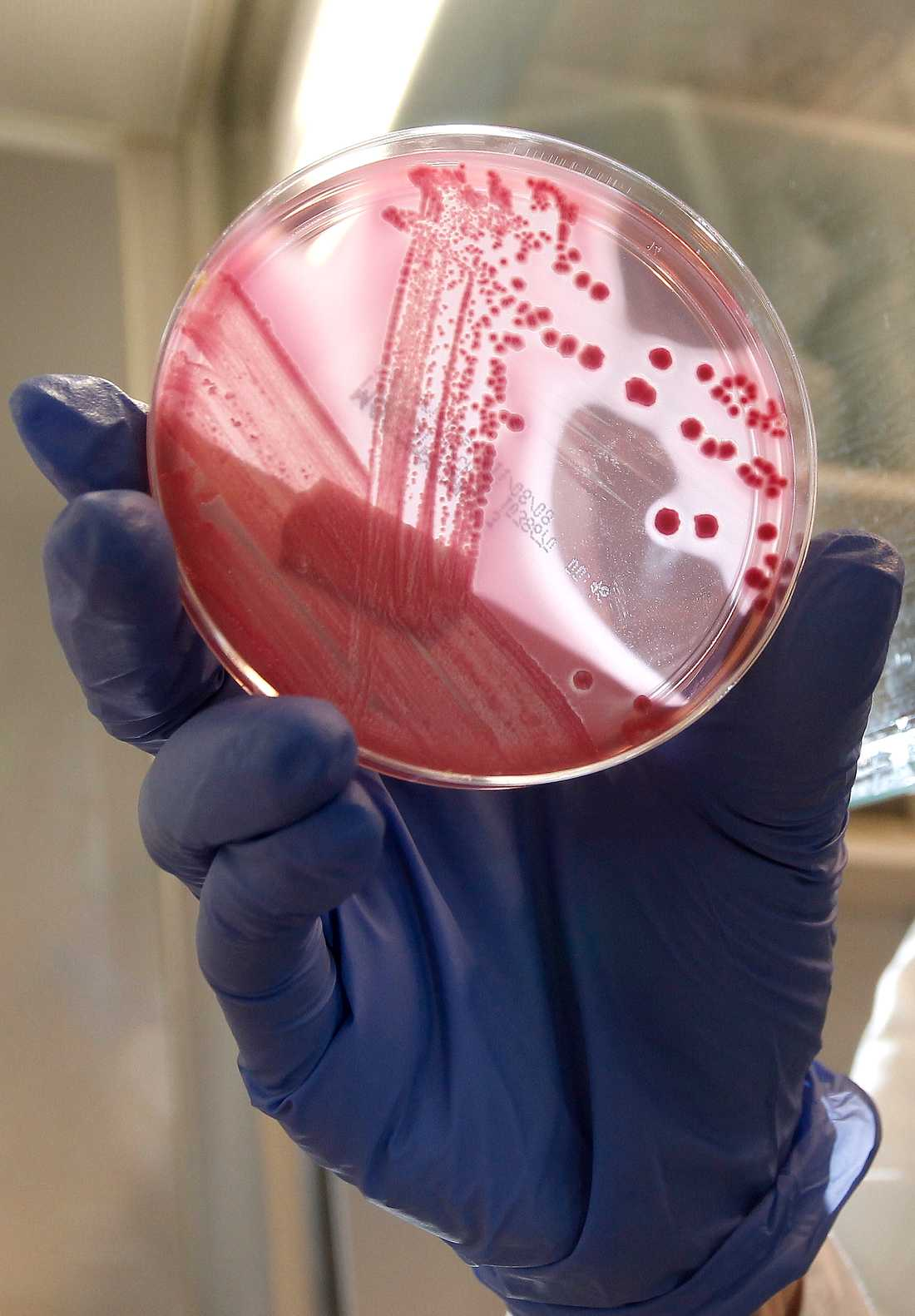 Bakterieodling med EHEC i ett laboratorium.