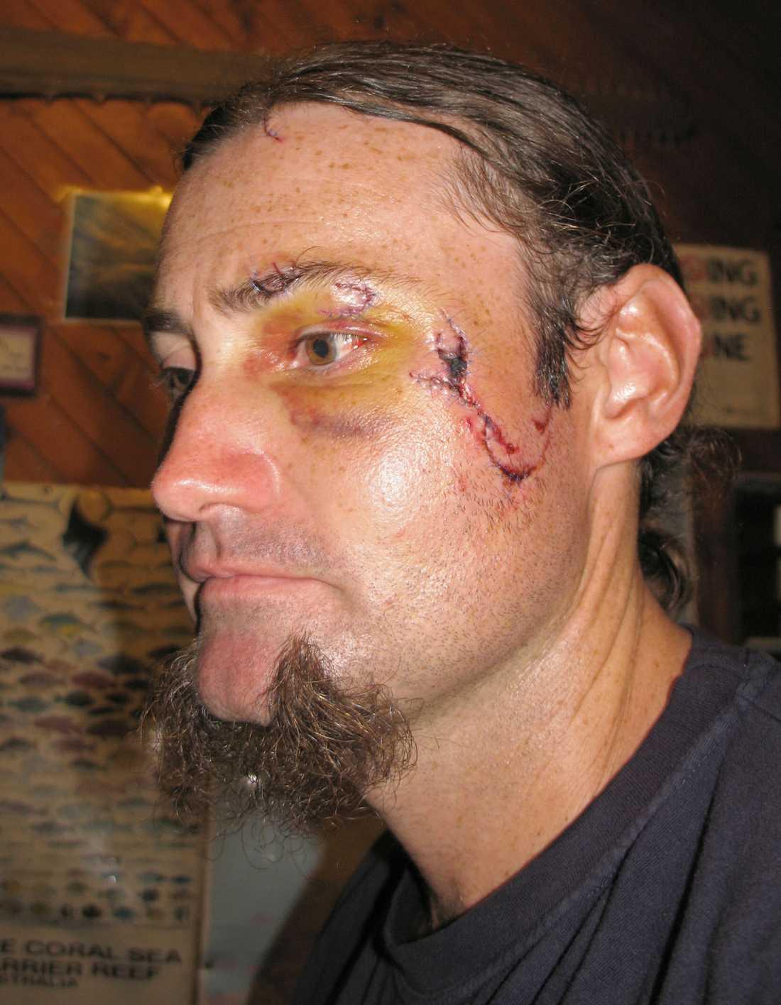 Matt Martin, 35, fick sys med 40 stygn i ansiktet efter krokodilattacken.Foto: AFP