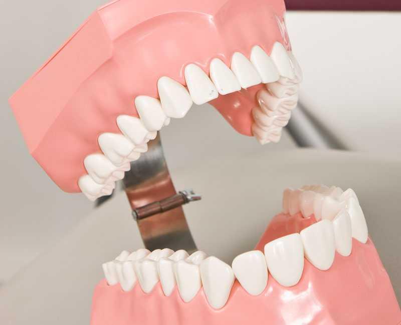 Tandlossning är ett problem som överviktiga löper högre risk att drabbas av.