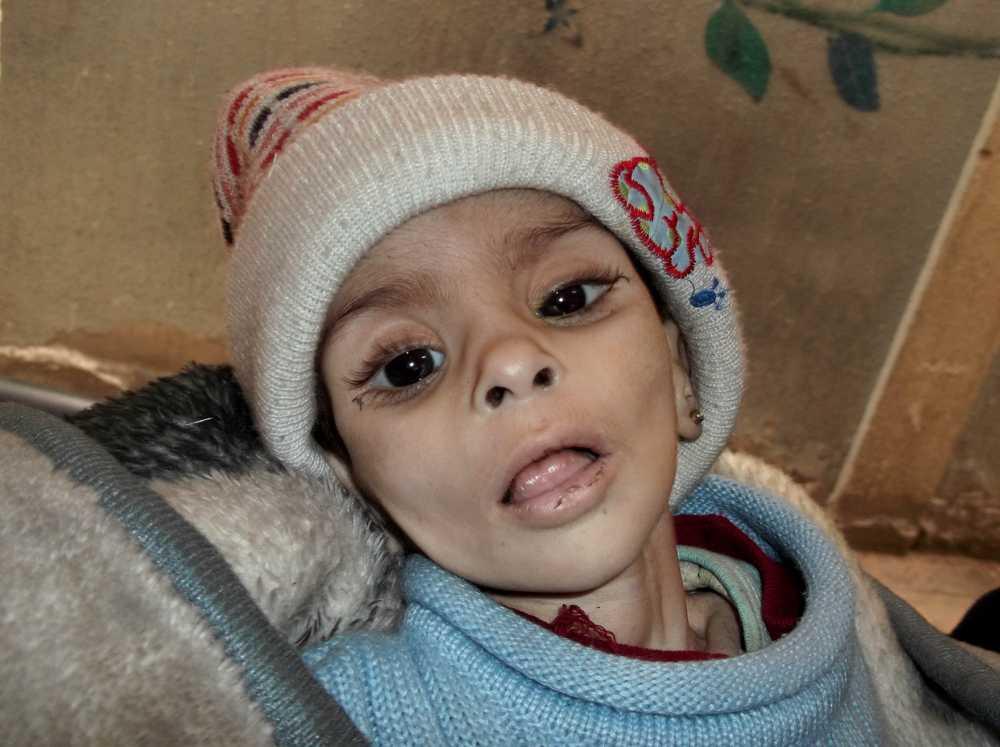 Den här pojken, fotograferad av palestinska aktivister i lägret, dog den 11 januari av svält-relaterade sjukdomar.