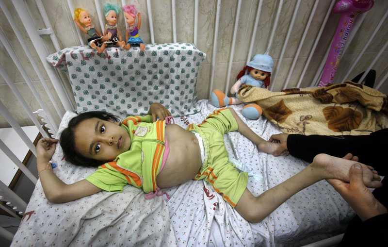 Rania, 10, har ryggmärgsbråck. Hon har ingen känsel i benen. Familjen har råd att betala för riktig vård. Men de är fast i Gaza.