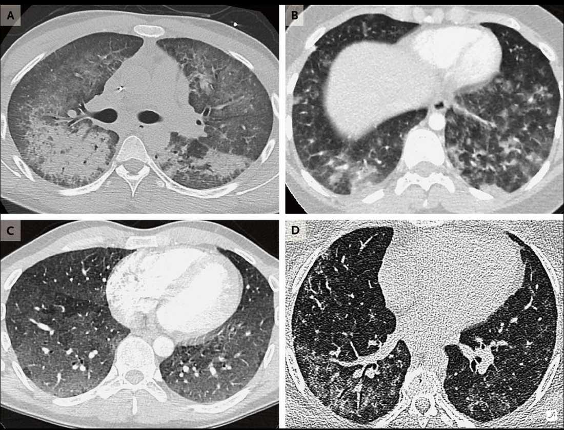 Röntgenbilder som visar skador på lungorna på patienter i åldrarna 19–49.
