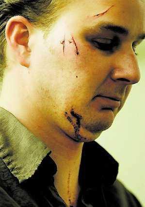 Mattias Bernhardsson efter misshandeln.