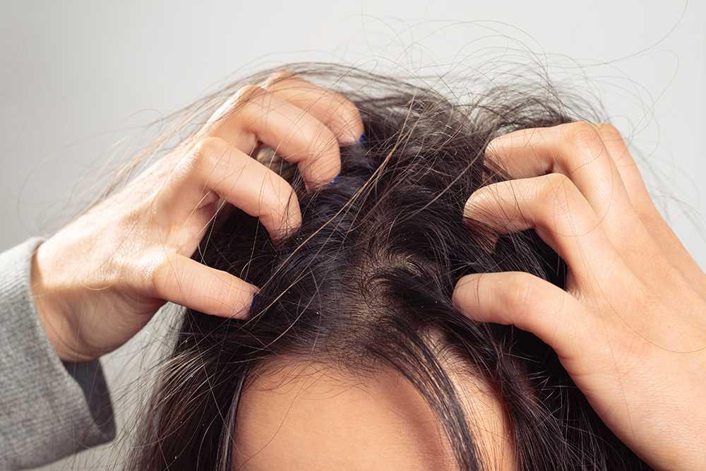 kliande torr hårbotten