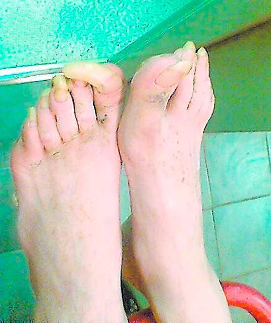 De vanskötta fötterna med kloliknande naglar tyder på ett hårt liv.
