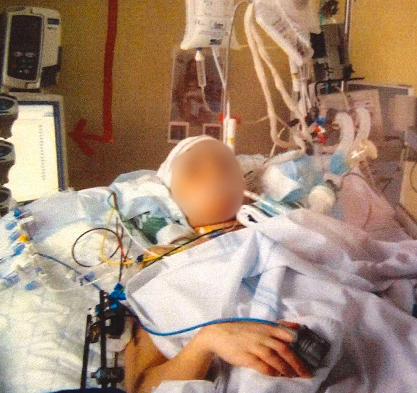 Sofia hölls nedsövd i fem veckor. Så gott som vartenda ben i hennes kropp hade brutits och hon hade omfattande skallskador.