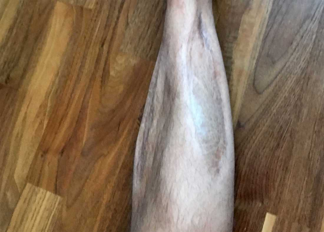 Robbans ben är fortfarande märkt av skadan 1998.